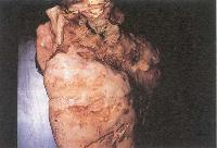 A legveszélyesebb fertőző betegség