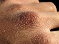 A száraz bőr ápolása - mit kerüljünk?